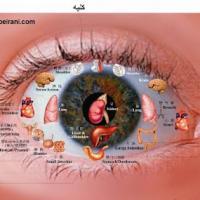 تشخیص بیماری از عنبیه